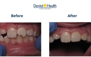 Composite Tooth Bonding | Before and After
