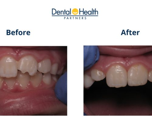 Composite Bonding | Before and After Tooth Restoration