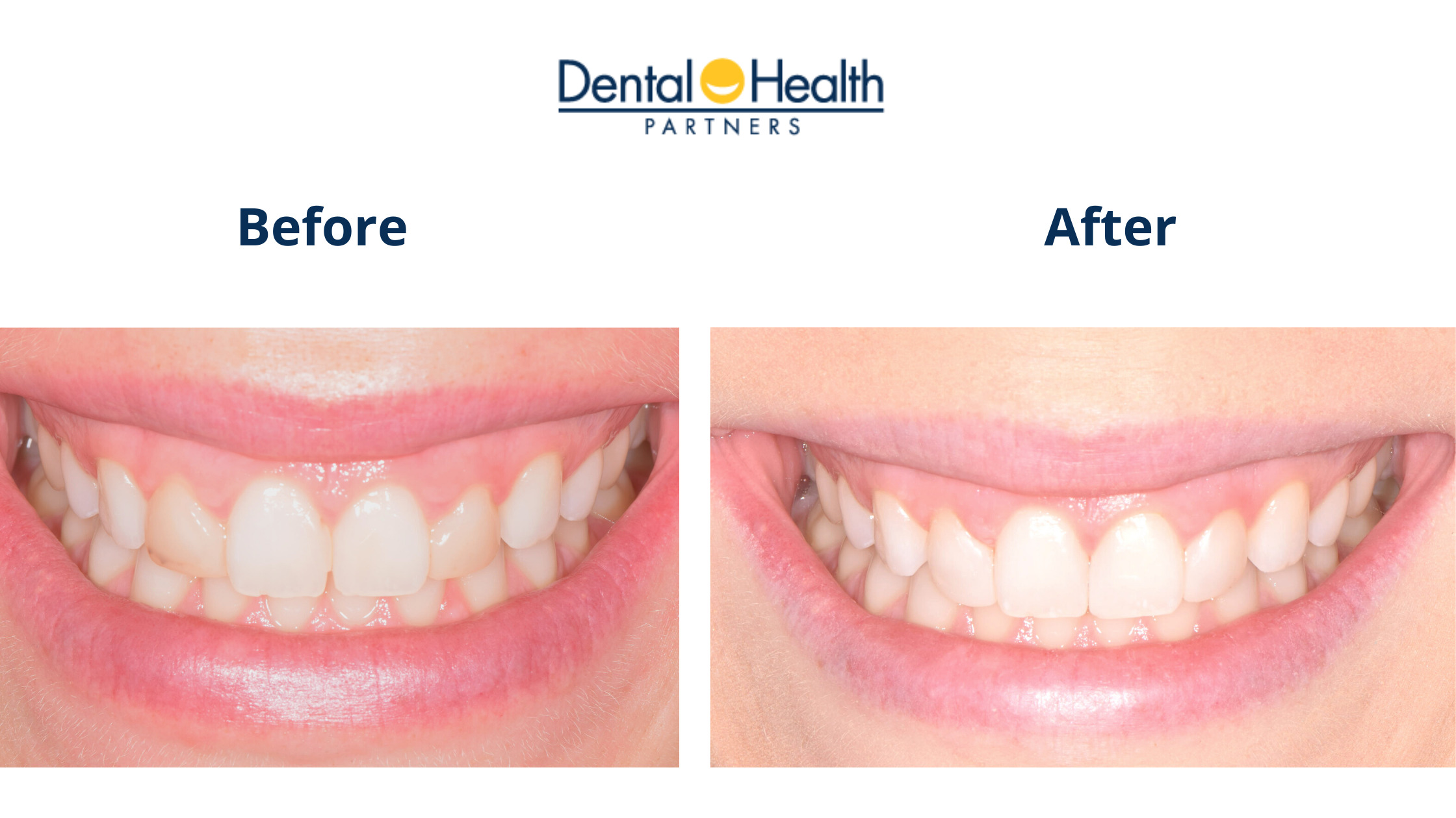 Before & After   Lateral Incisors Bonding Removal & Composite Re-Application